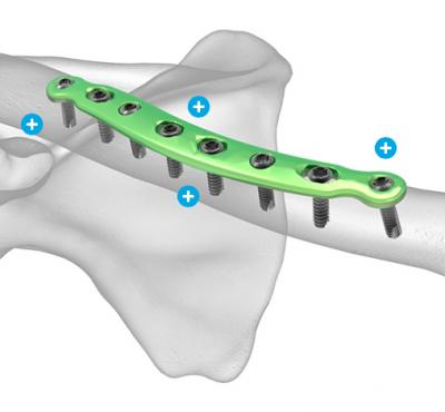 Upper Limb Trauma Update Blog Preview Image